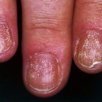 Lichen planus (klassischer Typ): Nagelbefall mit Längsstreifen, Atrophie der Nägel sowie zahlrei...