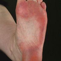 Lichen planus (klassischer Typ): flächenhafter Befall der Fußsohlen. An den Laufflächen ist (klas...