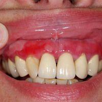 Lichen planus erosivus mucosae. Seit mehr als einem Jahr bestehende, schmerzhafte Gingivitis bei ...