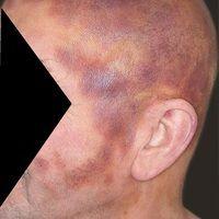 Leukämie akute myeloische: große rot-braune (hämorrhagische), unscharf begrenzte,oberflächenglat...