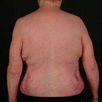 DD: Lipomatose, benigne symmetrische: sog. Stammfettsucht bei langjähriger Behhandlung mit systmi...