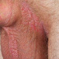 Lichen simplex chronicus. 42 Jahre alter Mann. Seit etwa 1 Jahr bestehende,kaum schuppende, fla...
