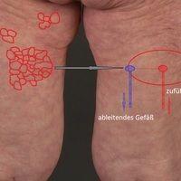 Livedo reticularis: temperaturabhängige geschlossene Ringstrukturen. Die Außenringeentsprechen n...