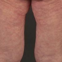 Livedo reticularis: temperaturabhängige geschlossene Ringstrukturen. Gesunde Patientin mit erhöht...