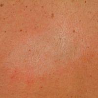 Atrophie der Hautoberfläche mit knittriger Oberflächenbeshaffenheit.