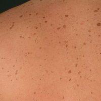 Solare Lentignes: multiple, scharf begrenzte unterschiedlich intensiv gefärbte Flecken im Bereich...