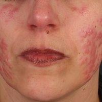 Dermatose, akute febrile neutrophile. Im Anschluss an hohes Fieberbei einer 36-jährigen Frau ak...