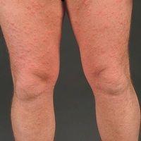 Dermatose akute febrile neutrophile: Befund der Beine.