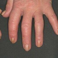 Pincer-nails: systemische Sklerodermie mit kontinuierlicher Bildung von Zangennägel. Diese sind i...