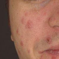 Syphiis: papulöses Syphilid. Akne-artiges Krankheitsbild mit disseminierten nicht juckenden, ver...