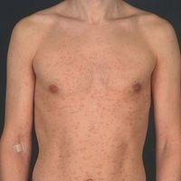Syphilis (Frühsyphilis):makulöses,chronisches Exanthem. Stellenweise werden auch verblassende ...