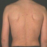 Syphilis: Frühsyphilis; rein makulöses nicht juckendes dichtes Exanthem.