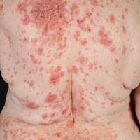 Pemphigus erythematosus: seit etwa 1 Jahr rezidivierende, symmetrische, in den seborrhoischen Are...