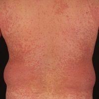 Morbilliformes Exanthem: wenige Tage altes, dichtes makulöses Virusexanthem mit Fieber, Abgeschla...