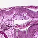 Tinea corporis. PAS-Färbung. Massenhaft PAS-positive Myzelien im Stratum corneum (durch Pfeile ma...