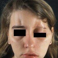Hemiatrophia faciei progressiva: Verlaufsdokumentation, Bild 3: Neurologische (Fazialparese) und ...