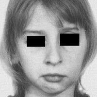 Hemiatrophia faciei progressiva: Verlaufsdokumentation, Bild 2: 12- jährige Patientin mit deutlch...