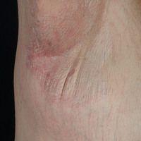 Lichen sclerosus der Axilla: großflächige, wenig symptomatische,weißlich, auch rötliche,atrophi...
