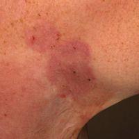 Pemphigus chronicus benignus familiaris: chronische, äußerst therapieresistente , scharf begrenzt...