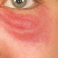 Lymphadenosis cutis benigna: Seit mehreren Monaten bestehender, roter, unscharf begrenzter, schme...