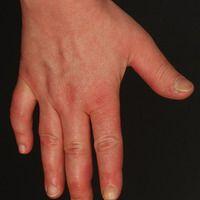 Mixed connective tissue disease: 53 Jahre alte Patientin. Seit mehreren Jahren Raynaud-Syndrom be...
