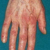 Mixed connective tissue disease: streifiges livides Erythem am Handrücken sowie den Fingerrücken,...