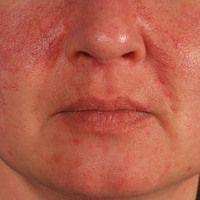 Mixed connective tissue disease: 43 Jahre alte Patientin (mit klinischem Aspekt des systemischen ...