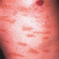 Parapsoriasis en plaques, benigne kleinherdige Form. 55 Jahre alter Patient mit kleinfleckiger Pa...