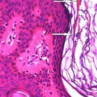 Pityriasis versicolor: masasenhaft Sporen im Stratum corneum nachweisbar. Durch Pfeile gekennzeic...