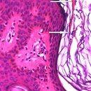 Malasseziafollikulitis: Nachweis von massenhaft Sporen (Pfeile)im Stratum corneum des Follikels.