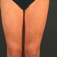 Pityriasis lichenoides chronica: 16 jährige, ansonsten gesundePatientin, mit einem seit mehreren...