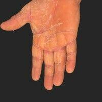 Pityriasis rubra pilaris (adulter Typ): zum Handgelenk hin scharf abgesetzte (Unterschied zum hy...