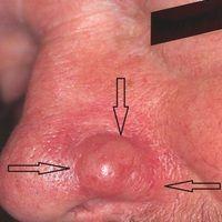 Knoten - Rhinophym umschriebenes: seit 2 Jahren zunehmende, symptomloselokalisierte Phymbildung ...