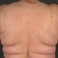 Lipomatose benigne symmetrische: Schultergürtel oder pseudoathletischer Typ.