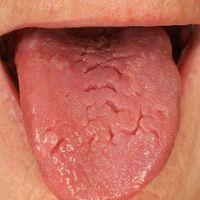 Amyloidose vom AL-Typ: Lingua plicata bei Makroglossie und systemischer Amyloidose vom AL-Typ.
