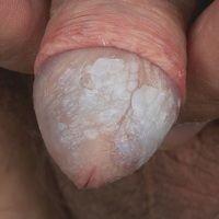 Lichen sclerosus des Penis: jahrelang persistierender Lichen sclerosus mit verruköser Umwandlung ...
