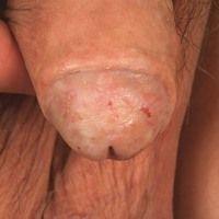 Lichen sclerosus des Penis: fortgeschrittener Befund mit breiter Synechievon Glans penis und inn...