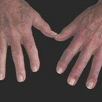 Perniones: deutliche Akrozyanoseder Hände. Schmerzhafte akrale Entzündungen v.a. in der Übergang...
