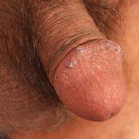 Angiokeratome der glans penis: völlig symptomloseb blaue komprimierbare Knötchen mit leicht verru...