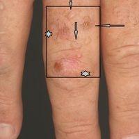Porphyria cutanea tarda: Detailaufnahme. Ältere Narben durch sterne geknnzeichnet. Vertikale Pfei...