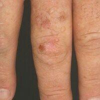 Porphyria cutanea tarda: Detailaufnahme. Die Vielfältigkeit der Hautveränderungen kann durch sorg...