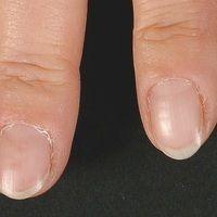 Nagel:Etwas trockene Haut, Nagelhäutchen leicht keratotisch und fokal nicht festanliegend. Seit...