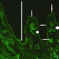 Porphyria cutanea tarda: Detailaufnahme mit linearen Ablagerungen von Fibrinogen an der Basalmemb...