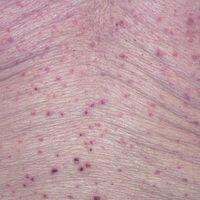 Pityriasis lichenoides chronica: seit Monaten bestehendes, mit erheblichem Juckreiz einhergehende...
