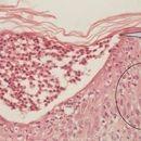 Psoriasis pustulosa generalisata: akute Psoriasis pustulosa. Spongiforme, subkorneale neutrophile...
