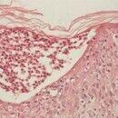 Psoriasis pustulosa generalisata. Akute Psoriasis pustulosa. Spongiforme, subkorneale neutrophile...