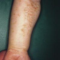 Incontinentia pigmenti, Typ Bloch-Sulzberger. Girlandenförmige Pigmentierung am Unterarm im Verla...