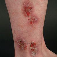 Nummuläre Dermatitis: chronisch aktive, seitmehreren Monaten bestehende, ca. 6 cm große,erhaben...