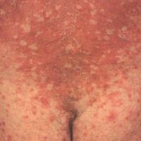 Pityriasis rubra pilaris (adulter Typ) Detailansicht: seit Jahren chronisch-rezidivierender Verla...