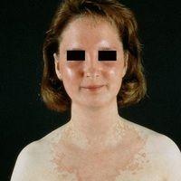 Pityriasis rubra pilaris (adulter Typ): Flächige, pityriasiform schuppende gelb-rötliche, scharf...